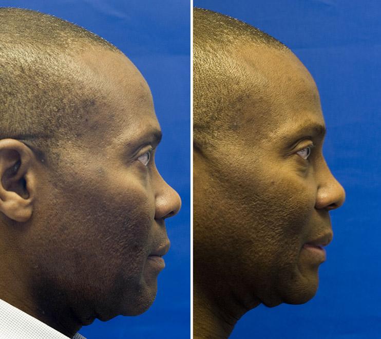 African American bridge augmentation with septal cartilage