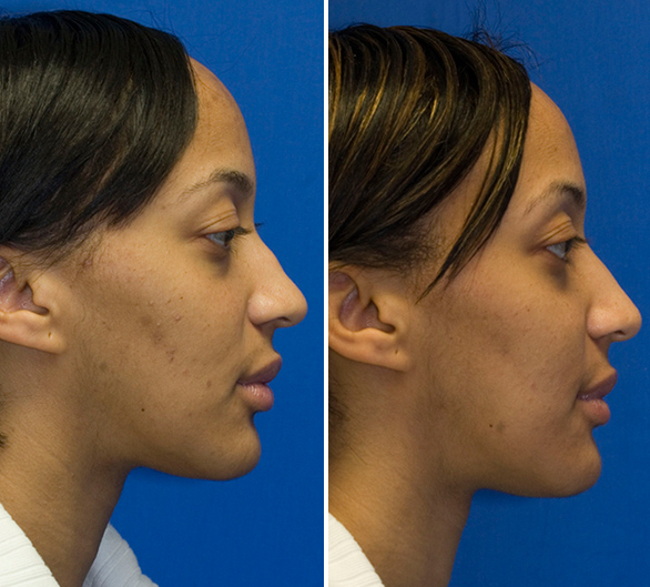 African American hump reduction profile view