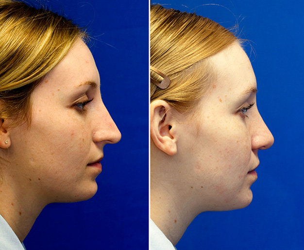 Drooping long nose rhinoplasaty repair