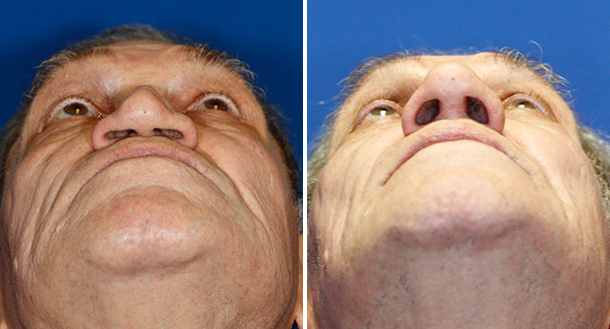Collapsed nasal tip repaired with rib cartilage graft to rebuild a missing cuadal septum