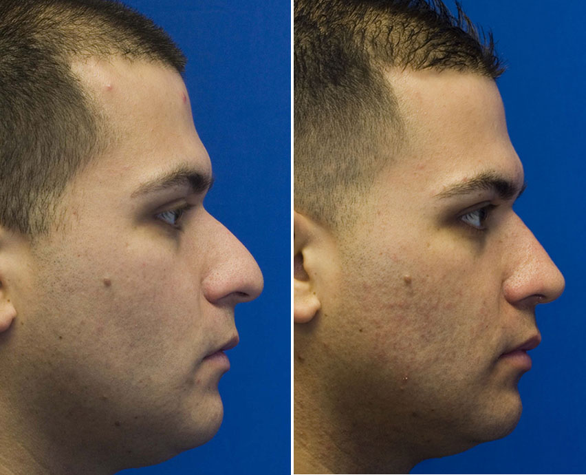 Hispanic male rhinoplasty
