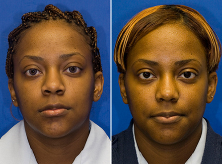African American nostril reduction with alar base excision