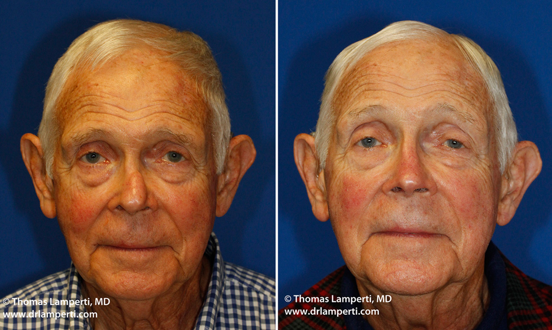 Frontal revision rhinoplasty patient 13 with silicone implant out of place
