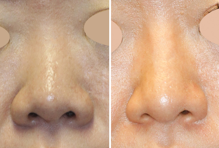 Asian rhinoplasty frontal photo (click to see more photos of this patient)