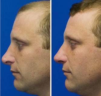 Revision rhinoplasty to repair pollybeak deformity and hanging columella