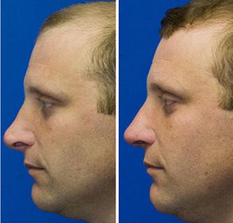 Revision rhinoplasty to repair pollybeak deformity and hanging columella