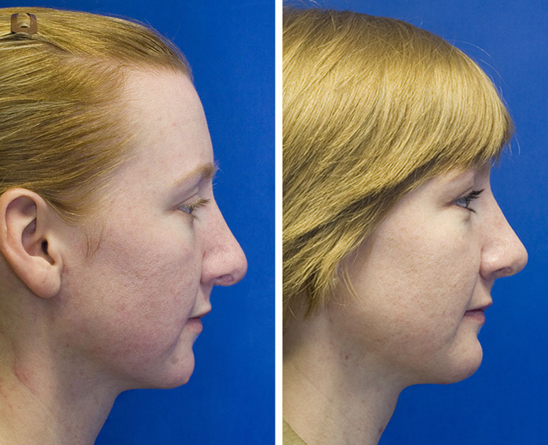 Revision rhinoplasty to repair hanging columella and pollybeak deformity