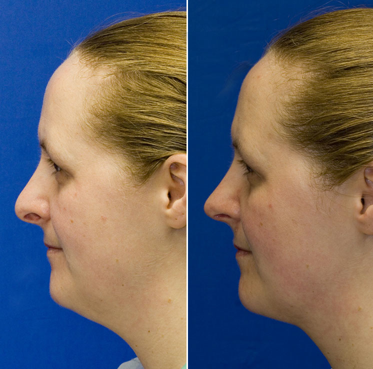 Pollybeak deformity and hanging columella repair combined with neck liposuction