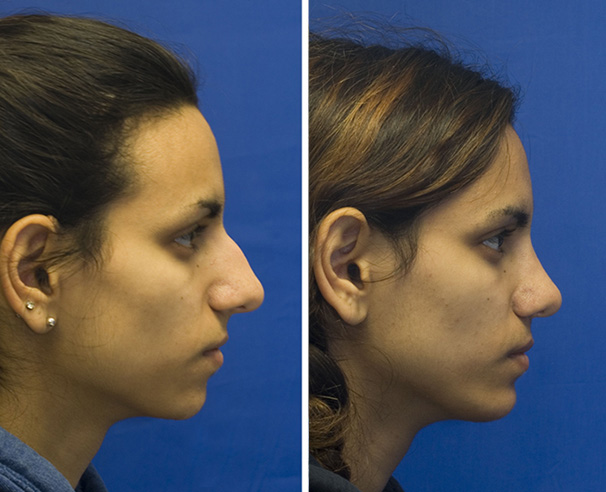 Indian rhinoplasty profile before and after with hump removal. Notice the mild amount of tip deprojection. A medium sized silastic chin implant was also placed.