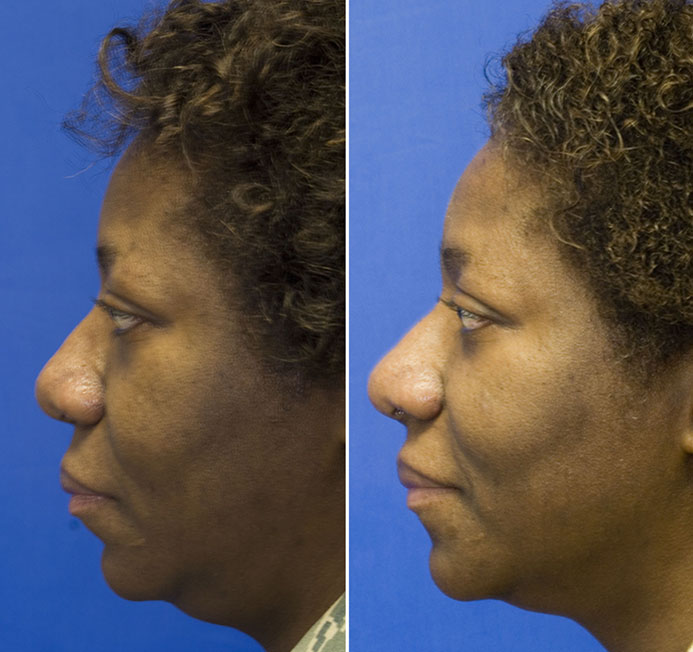 African American rhinoplasty increase tip projection