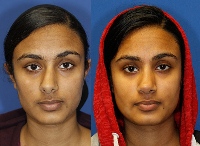 Indian rhinoplasty patient 28 before and after frontal. Click photo to see more.