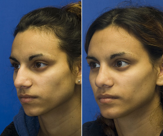 Indian rhinoplasty patient 23 oblique before and after photos. This patient also had a chin implant placed. Click to see more.