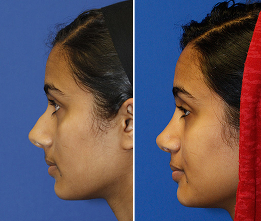 Indian rhinoplasty patient 28 before and after profile photos. Click photo to see more.