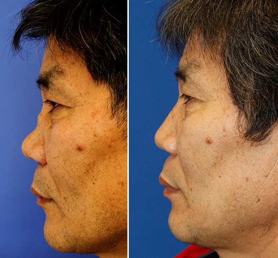 Before and after Wegerner's saddle nose deformity rhinoplasty repair