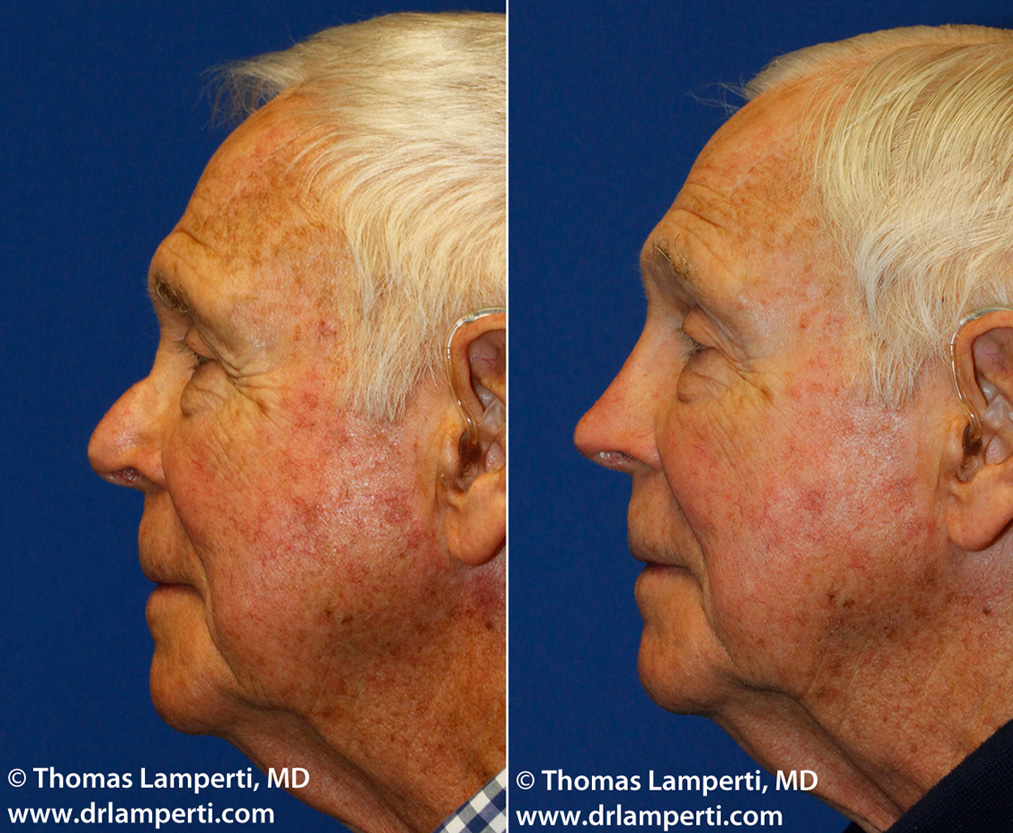 Patient 13 revision rhinoplasty with bridge silicone implant replacement with rib cartilage