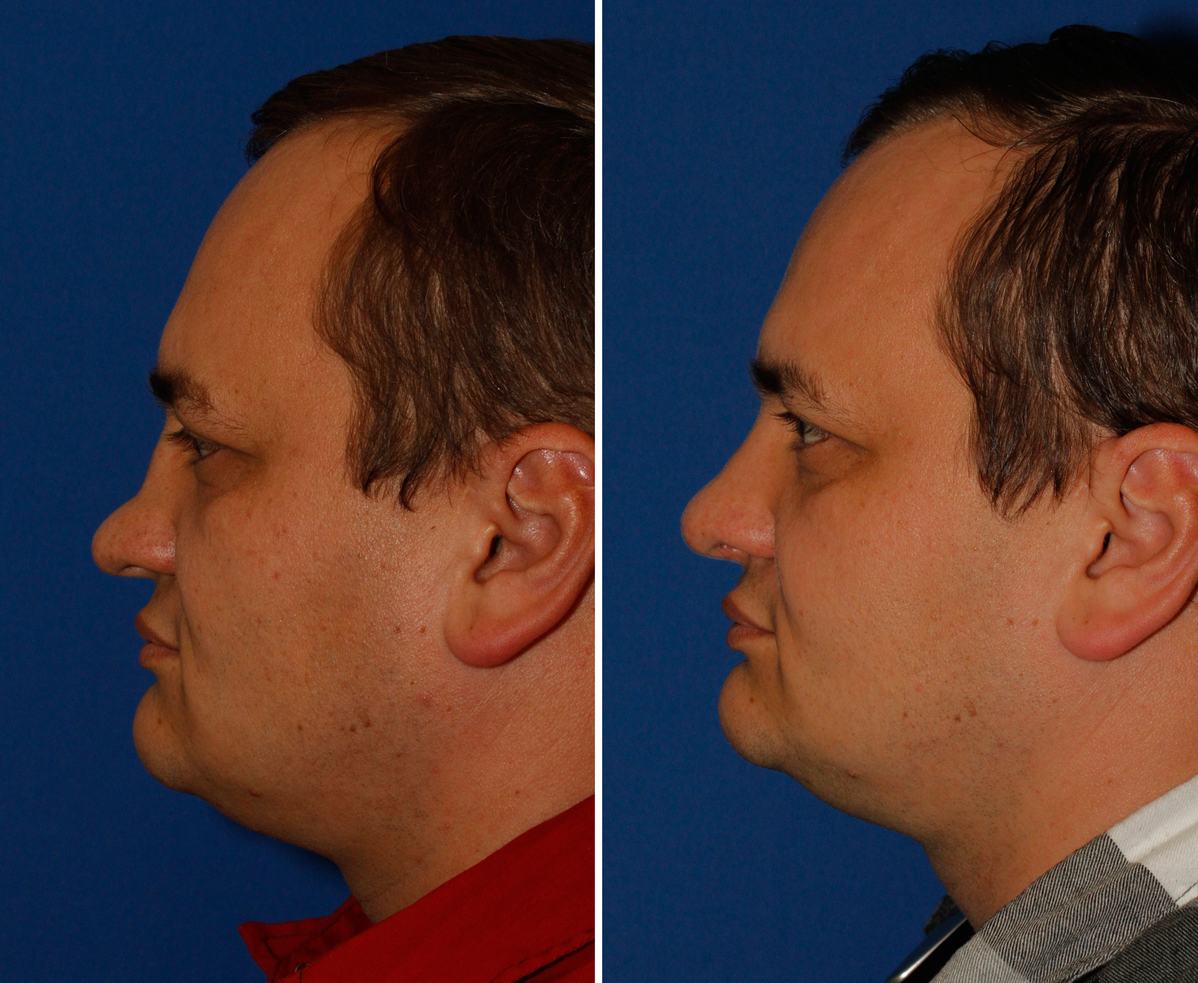 Saddle nose rhinoplasty patient 50 profile before and after photos
