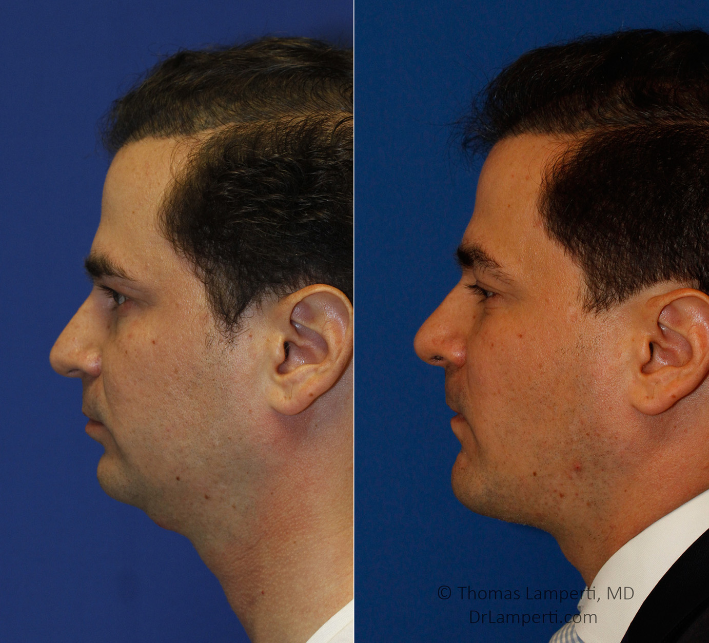 Rhinoplasty patient 51 before and after droopy tip repair rhinoplasty