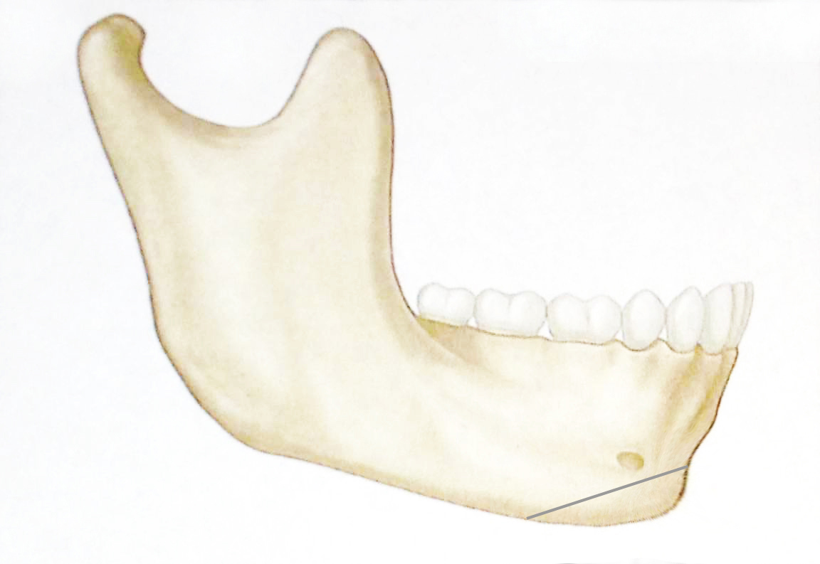 lateral mandible retrusive chin with osteotomy.jpg