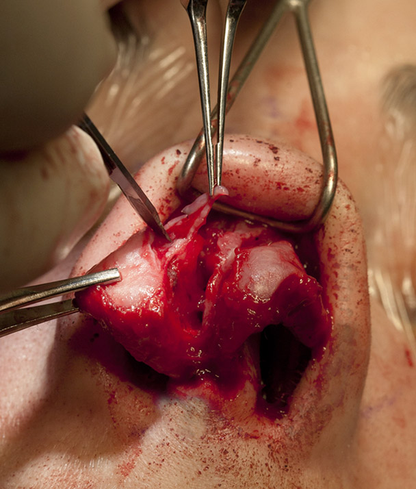 LLC strut graft placement showing initial cephalic trim to gain access to the area under the cartilage