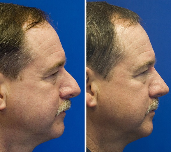 male thick skin hump removal before and after