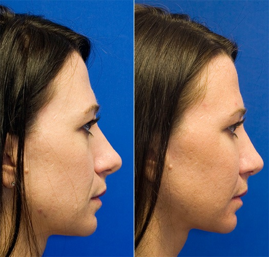 Long tip combined with cheek fat grafting rhinoplasty