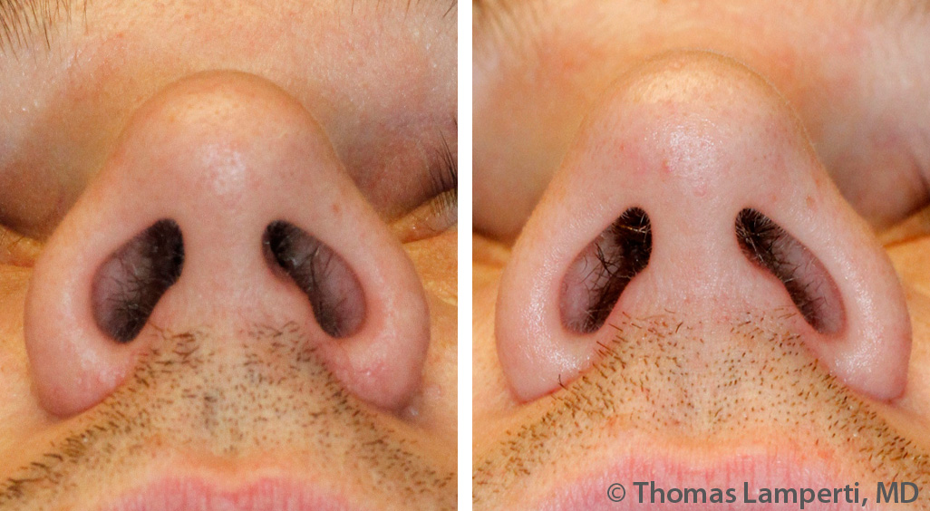 Caucasian male alar base reduction before and after photos.jpg