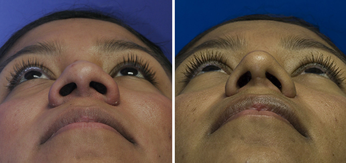 Hispanic nostril narrowing with alar base reduction