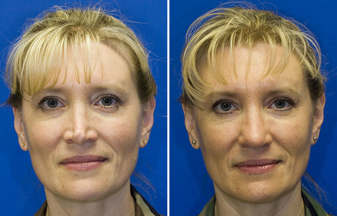 Patient 1 revision rhinoplasty pinched, distorted tip reconstruction