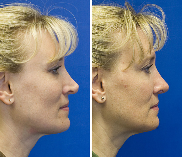 Revision rhinoplasty patient 1 profile