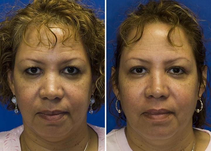 Isolated nasal bone narrowing rhinoplasty