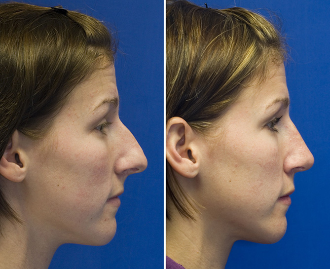Over projected long nose rhinoplasty profile