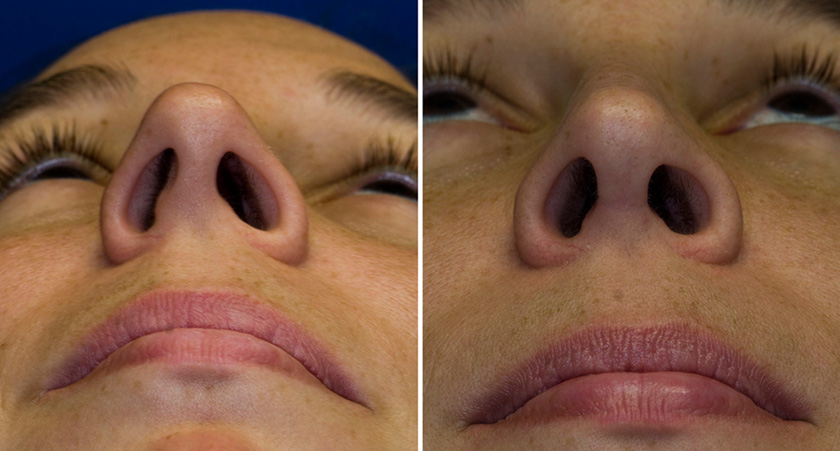 deviated septum surgery cost - 840×451