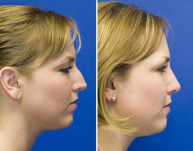Ринопластика горбинки носа фото до и после