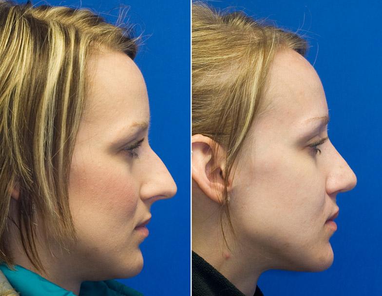 Patient 25 long nose profile