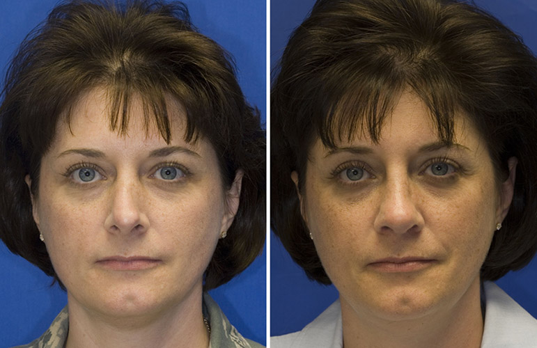 Patient 3 revision rhinoplasty left middle third collapse from prior hump reduction