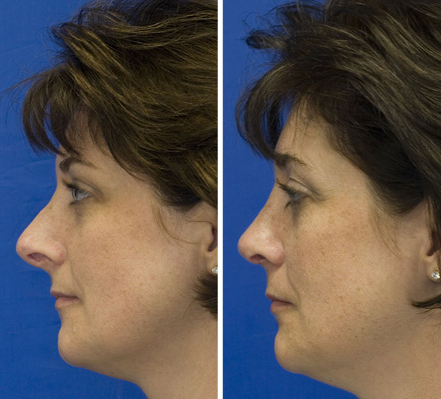 Revision rhinoplasty patient 3 upturned nose repaired with revision rhinoplasty