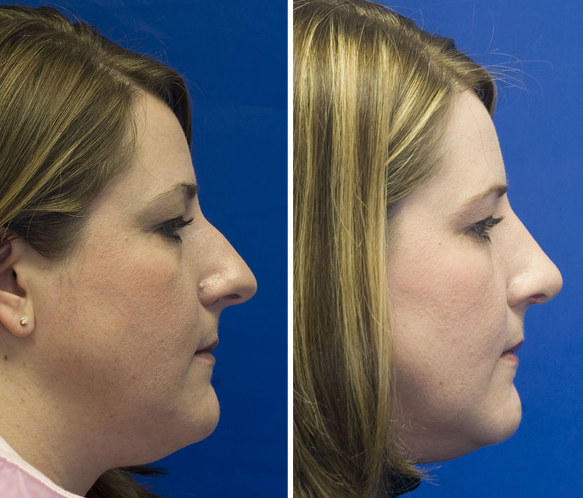 Patient 30 over-projected tip and hump removal along with mole excision