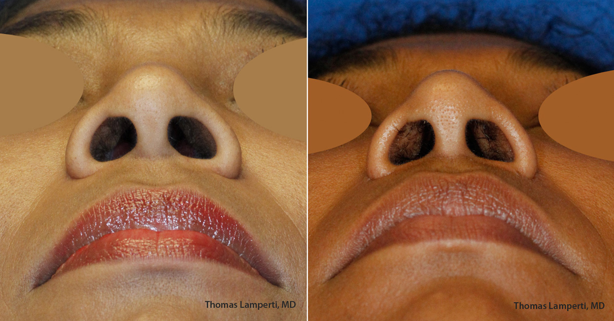 African-Dominican rhinoplasty nostril reduction Base View