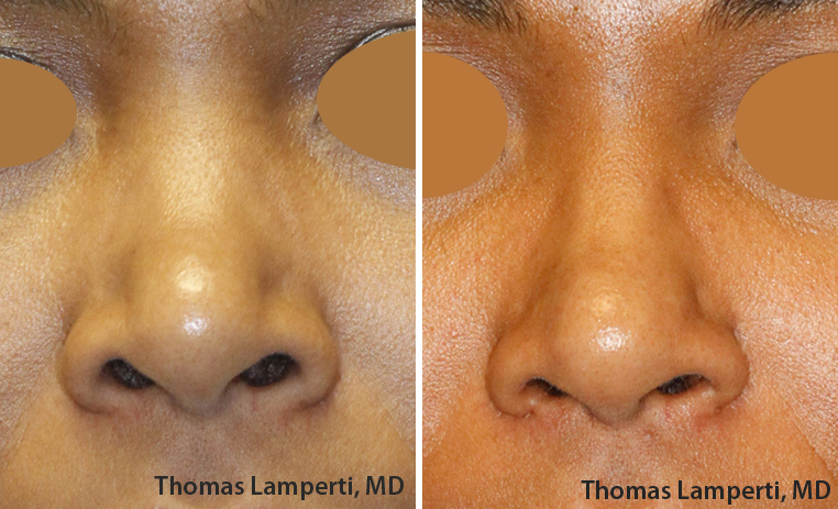 African-Dominican rhinoplasty nostril reduction Frontal View