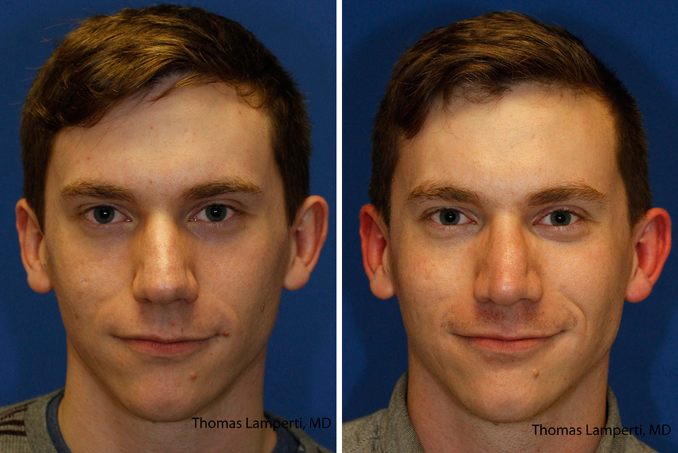 Patient 43 bulbous nose rhinoplasty with thick skin and wide nasal domes.jpg