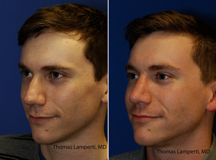 Patient 43 before and after alar base wedge excision rhinoplasty to reduce alar lobule and nostril thickness.jpg