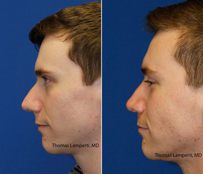 Patient 43 bridge hump removal before and after rhinoplasty.jpg