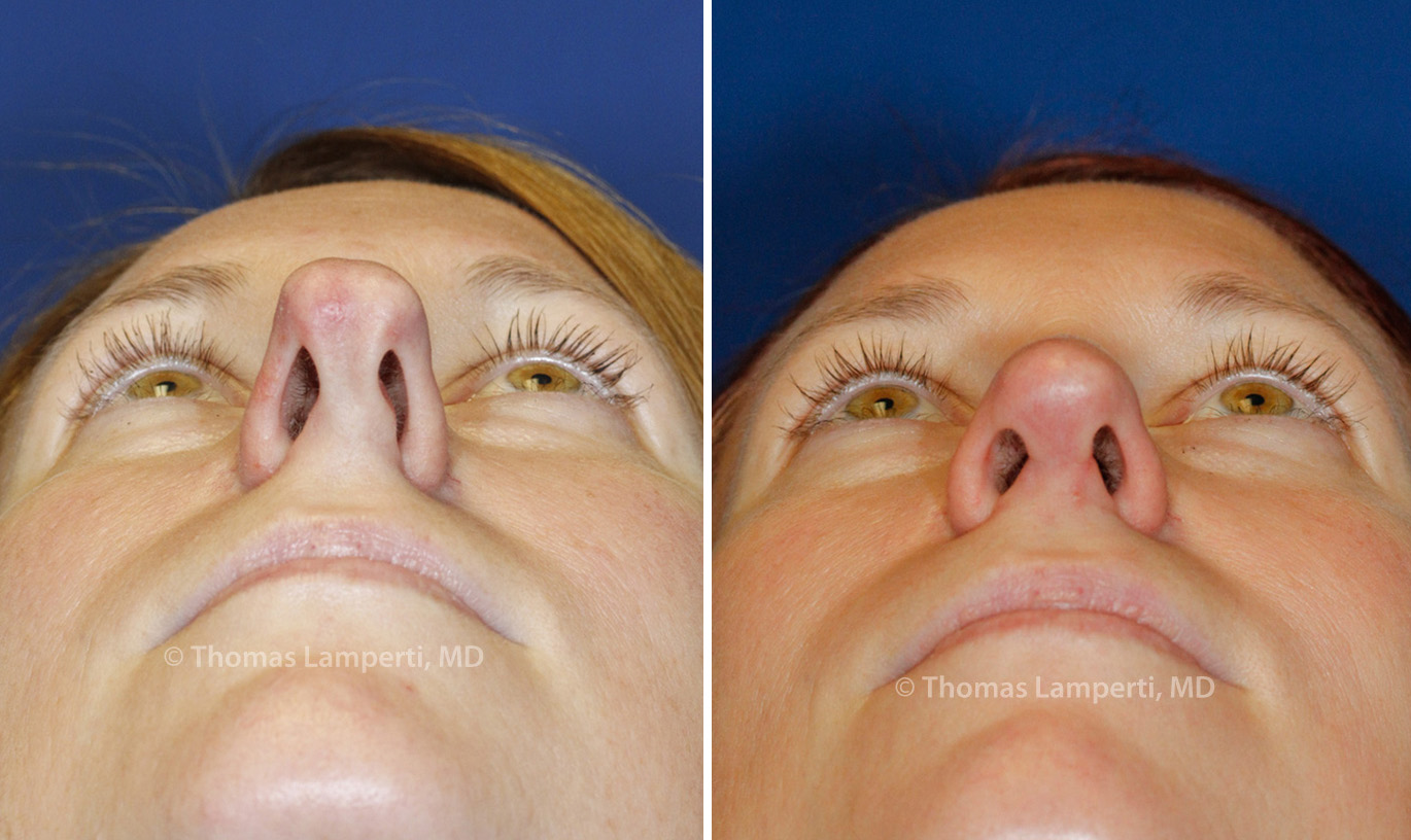 Rhinoplasty patient 44 base boxy tip before and after photos