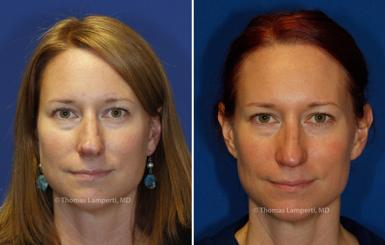 Rhinoplasty patient 44 frontal before and after boxy tip repair.jpg