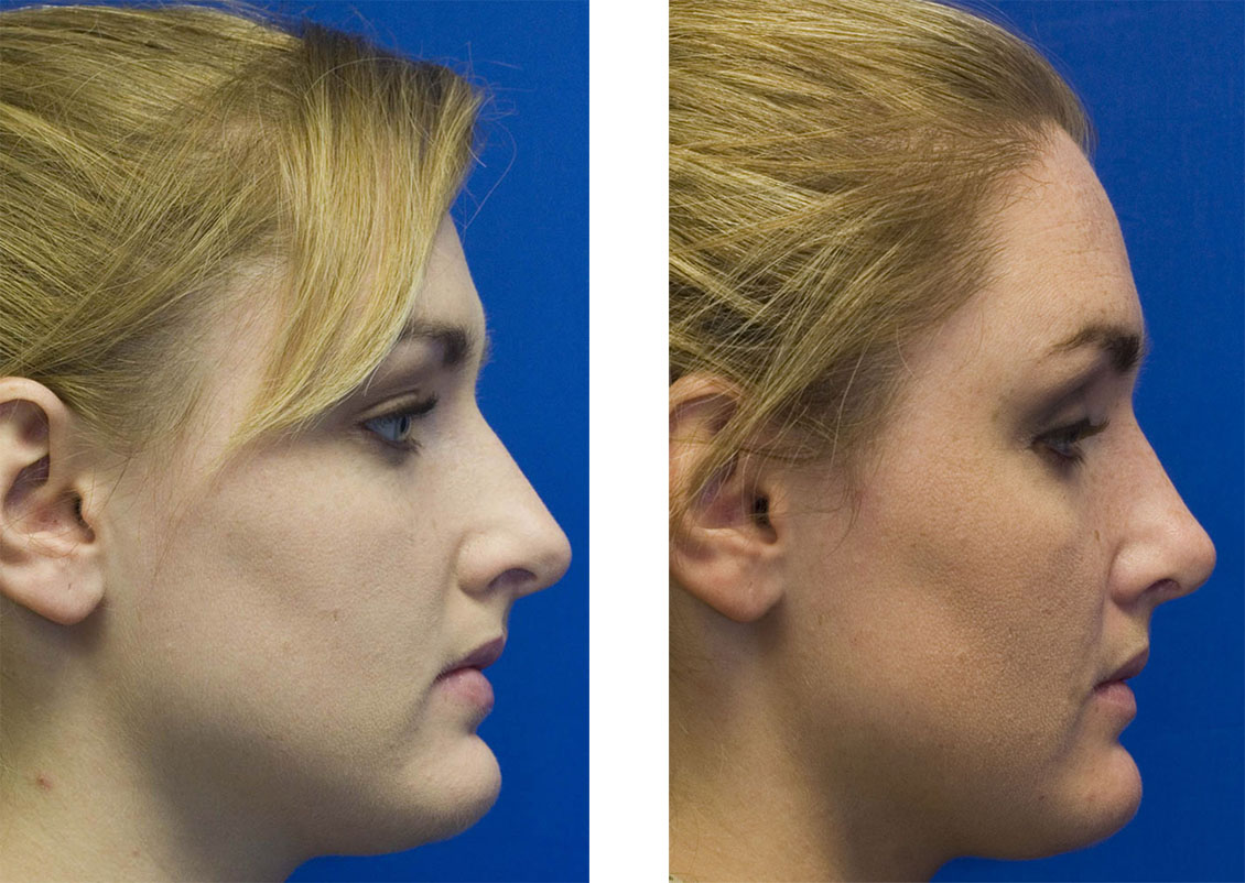 Patient 5 over projected nose rhinoplastu