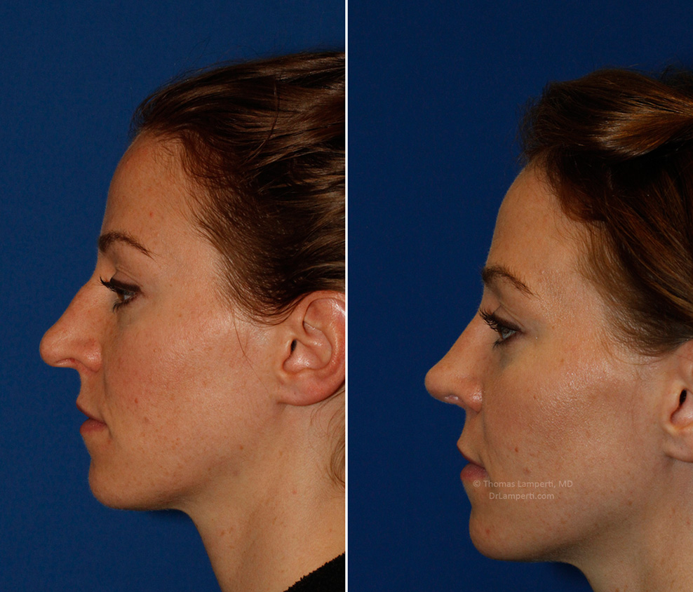 Patient 53 left profile before and after bridge hump removal