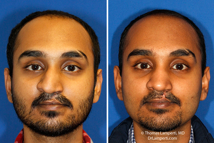 Crooked Nose | Rhinoplasty in Seattle | Rhinoplasty Surgeon
