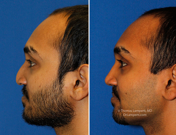patient-57-cleft-rhinoplasty-l-profile-montage.jpg