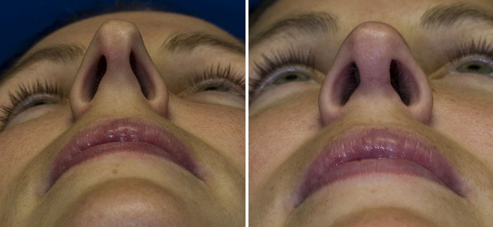 Asymmetric nostril length and size repair
