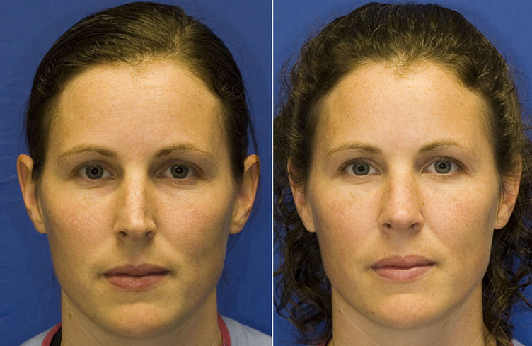 Patient 8 crooked nose due to concavity of the left lower lateral cartilage